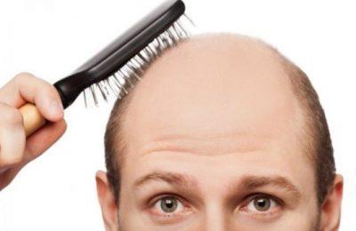 Rụng tóc hói đầu là như thế nào ? Chữa trị bệnh rụng tóc hói đầu ở nam giới