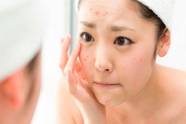 các bước skincare cho da dầu mụn tuổi dậy thì