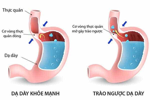ăn gừng chữa trào ngược dạ dày