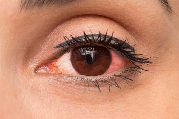 Đeo lens bị đỏmắt